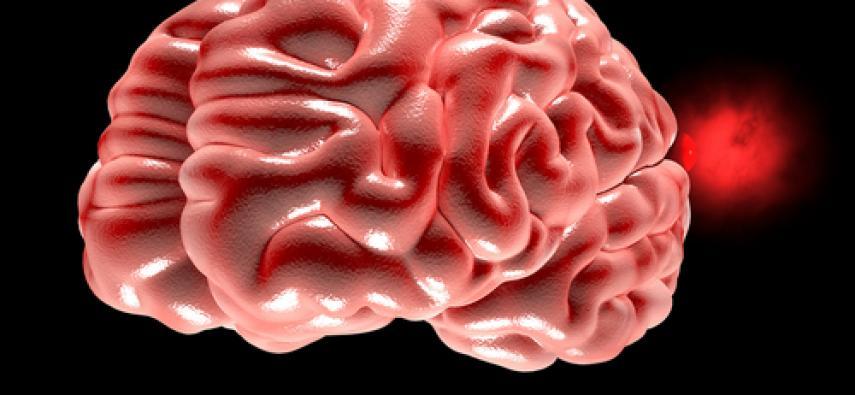 Objawy tętniaków mózgu