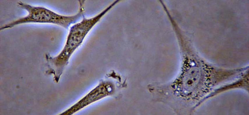 Skórzane neurony!