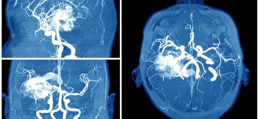 Zakrzepica zatok żylnych mózgu