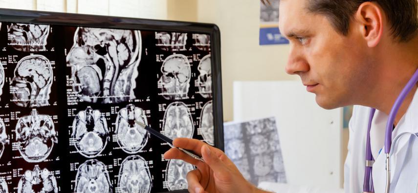 Zaburzenia poznawcze po chemioterapii