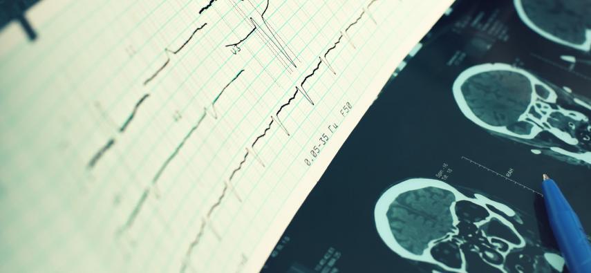 Przegląd technik neuroobrazowania