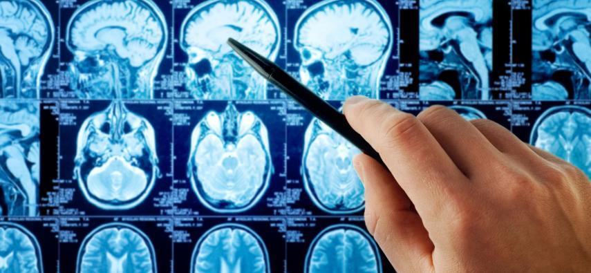 Wprowadzenie do neuroanatomii - główny podział strukturalny mózgu