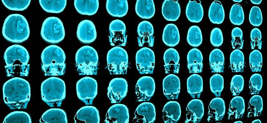TIA - przemijające niedokrwienie mózgu