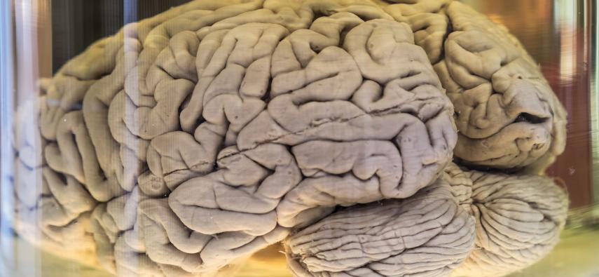 Kora mózgowa i płaty - podział strukturalny