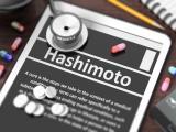Encefalopatia Hashimoto
