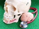 Śmierć mózgu