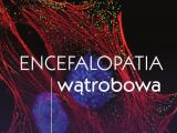 Encefalopatia wątrobowa wydawnictwa PZWL